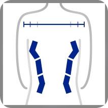 Funktion Schulterweite